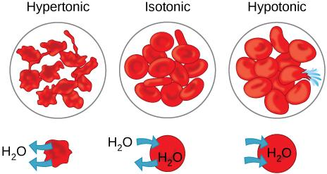 The left part of this illustration shows shriveled red blood cells bathed in a hypertonic solution. The middle part shows healthy red blood cells bathed in an isotonic solution, and the right part shows bloated red blood cells bathed in a hypotonic solution.