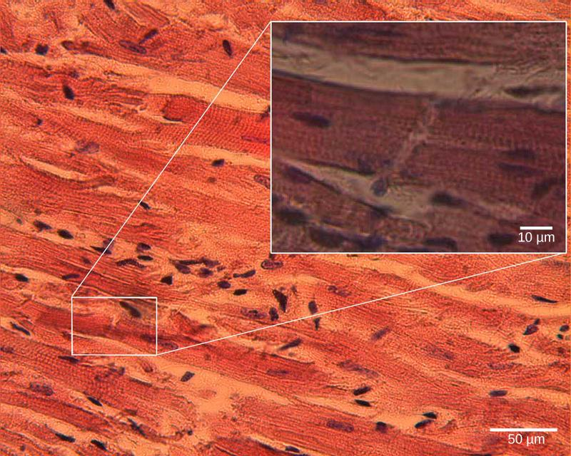 Micrograph shows cardiac muscle cells, which are oblong and have prominent striations.